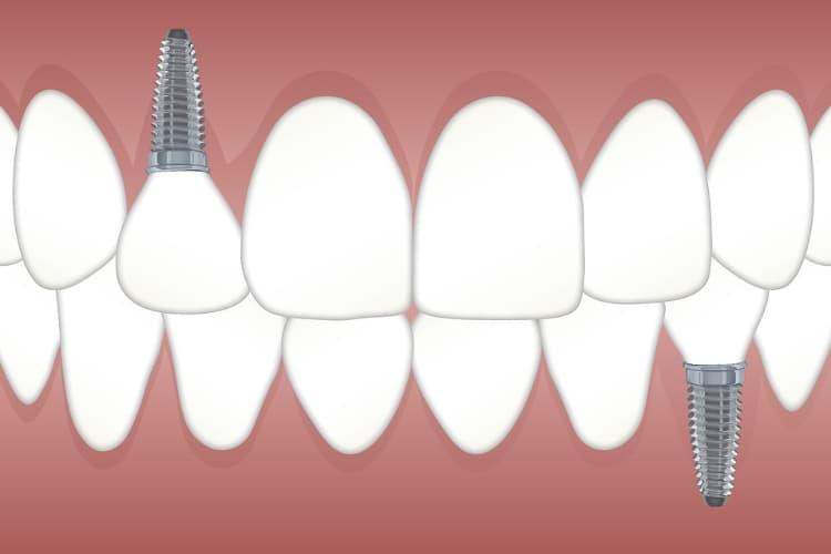 Les conditions à respecter avant la pose d'implants dentaires